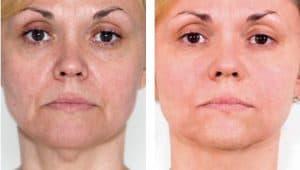 мезотерапия преди и след