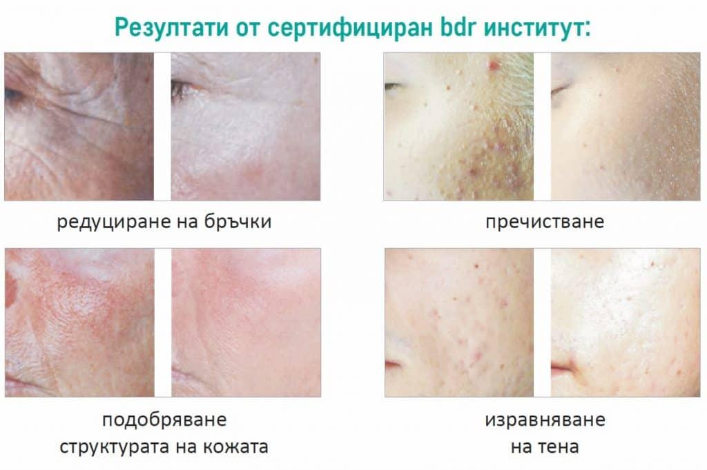 beauty defect repair преди и след